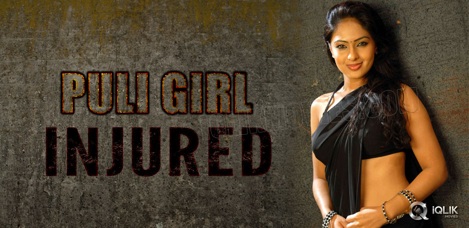 Puli-Lady-Nikeesha-Patel-injured