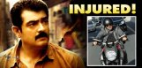 Hero-Ajith-Injured-But-Gets-Trolled