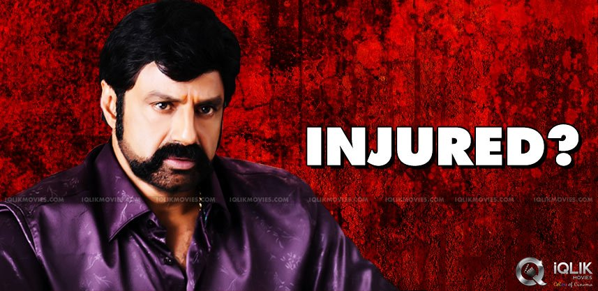 nanadamuri-balakrishna-injured-while-shooting