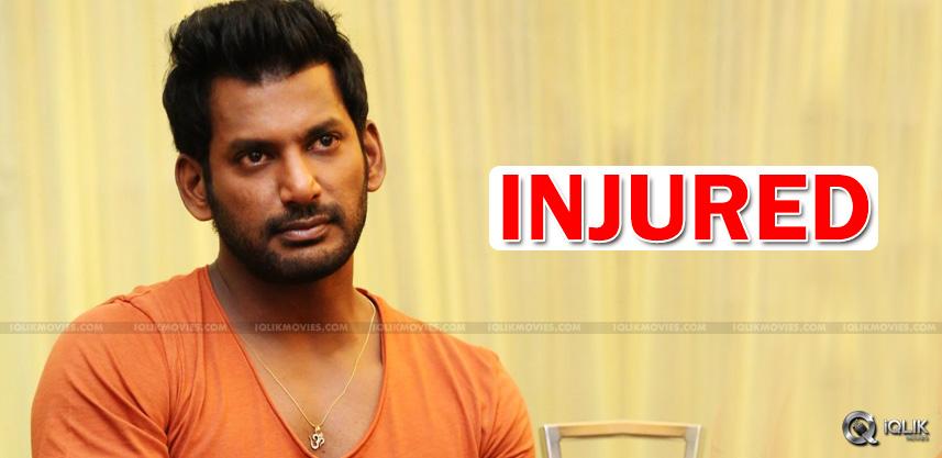 hero-vishal-suffers-minor-injuries-on-sets